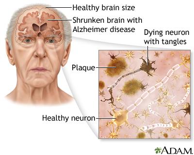 alzheimer dan vivix
