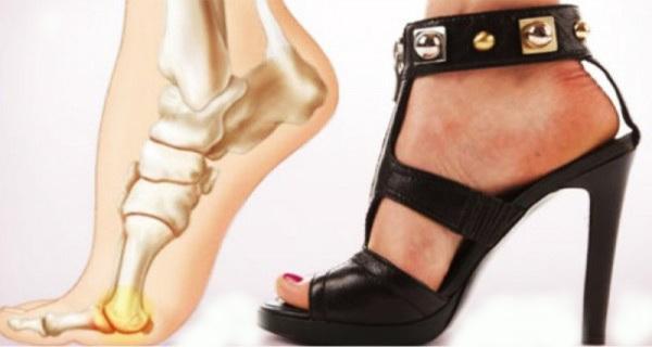 tocurile inalte suprasolicita picioarele si coloana vertebrala