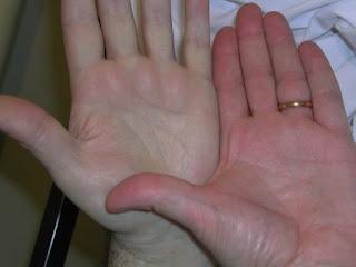 tanda anemia