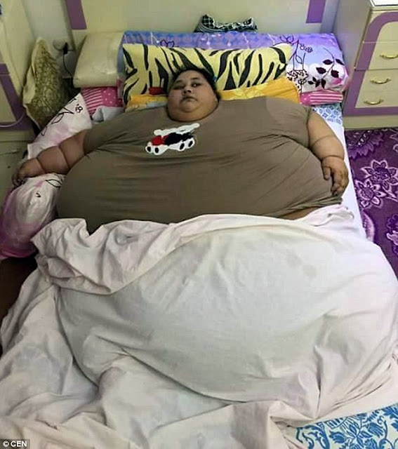 World's fattest woman Iman Ahmad Abdulati