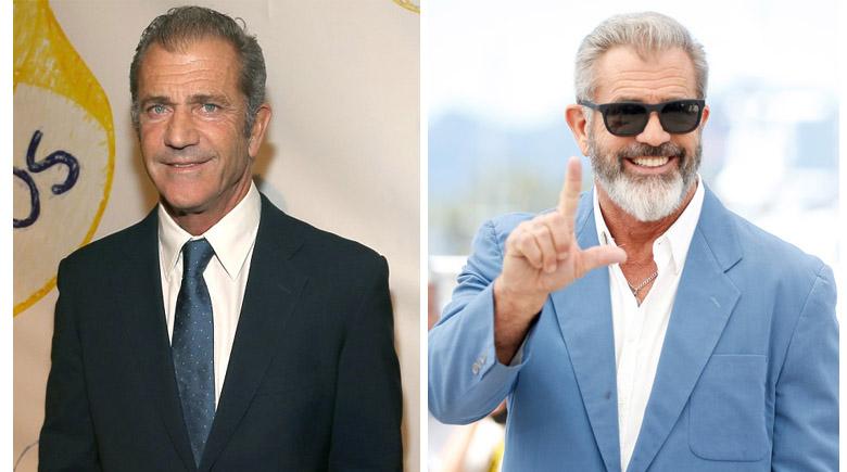 Alopecia y solución capilar de Mel Gibson