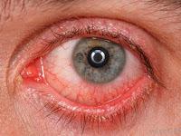 मॉनसून के सीजन में आंखें लाल मतलब कंजंक्टिवाइटिस का खतरा, Ayurvedic treatment of conjunctivitis