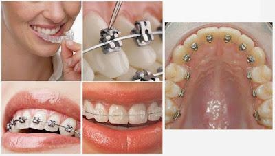 Bạn biết gì về niềng răng chỉnh nha