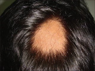 Cure your Patchy Hair loss (Alopecia Areata) in 28 days! - Guaranteed!