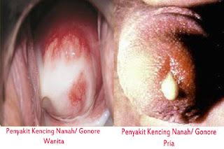 Foto Penyakit Sipilis