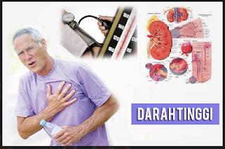 Terapi Menurunkan Tekanan Darah Tinggi