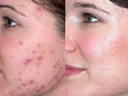 Pimples or Blackheads
