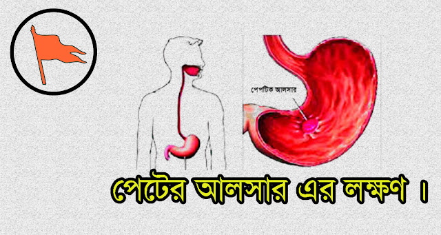 Symptoms of abdominal ulcer