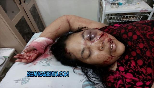 Istri Biro PLN Jadi Korban Perampokan Sadis Wajah Di Sayat Dan Tubuh Penuh Luka Tebasan.