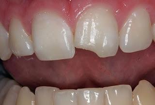 Tác hại của răng bị mẻ với sức khỏe