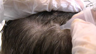 Lotion capillaire purifiante contre la chute de cheveux et la pellicule