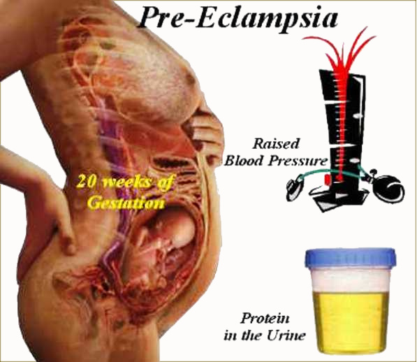Raised Blood Pressure and Protein in the Urine in Pre-eclampsia