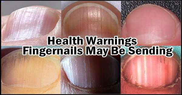 ignore 5 health warnings