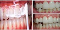 Bilas Gigi Anda dengan Campuran Ini dalam 5 Menit Tartar dan Plak Hilang dari Gigi Anda dan Nafas Pun Jadi Wangi !