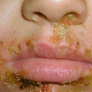 Honey-colored scabs surround the patient's mouth image photo picture