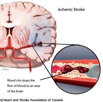 Stroke Iskemik dan Penyebabnya