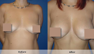 silicone nos seios antes e depois