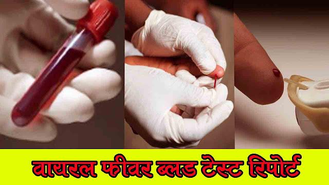 Viral fever blood test report