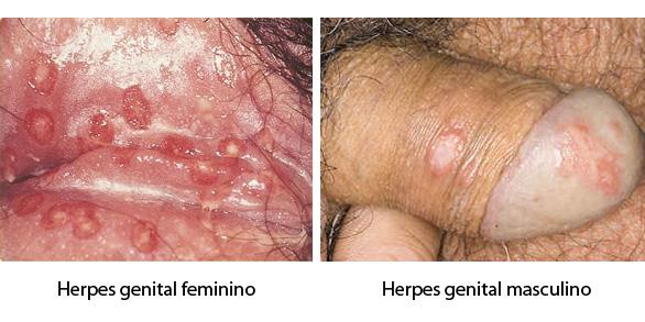 Herpes simplex 1 sintomas