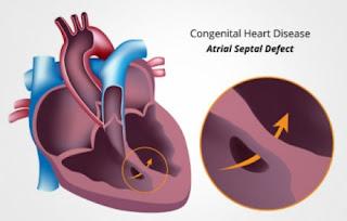 Cara mengobati jantung bocor