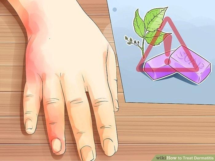 tentang dermatitis ruam kulit