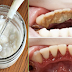 Remove Extreme Tartar, Cavities And Plaque Buildup Without Going To The Dentist