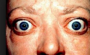 Obat Mata Menonjol Karena Hipertiroid