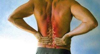 Cara Menghilangkan Sakit Boyok dengan Cepat dan Mudah