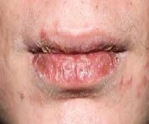 cara Mengatasi Bibir Kering pecah mengelupas puasi ruangan ac bayi anak