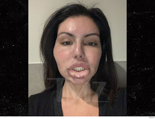 Surgery Gone Wrong! Instagram Model Suffers Face Swell After Another Botched Plastic Surgery In Brazil (Photos)