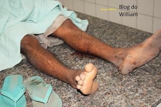 Jovem é morto a tiros e outro fica ferido, em Chapadinha