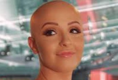 d0ce962d52 Καμπάνια κάνει «μόδα» τη γυναικεία τριχόπτωση (video) - Greek Web TV ...