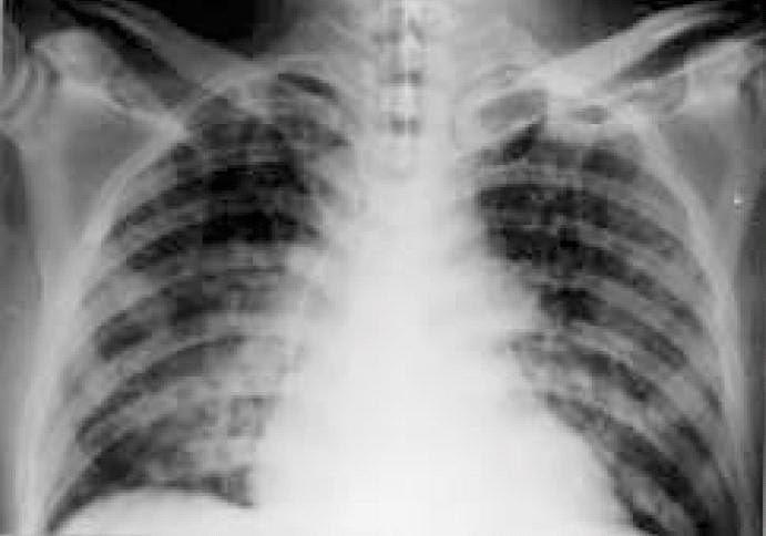 Síndrome de distress respiratorio