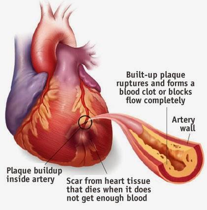 """Penyakit ini berlaku apabila pembuluh darah (arteri) menjadi sempit akibat penyumbatan plak lemak dan kolesterol mengakibatkan aliran darah terganggu dan tidak boleh mengalir ke jantung. Otot jantung akan mengalami kekurangan oksigen dan menyebabkan """"ischaemia"""". Jika penyumbatan pembuluh darah di tahap yang teruk (>75%) bekalan oksigen akan terhenti. Otot jantung yang terlibat akan mati. Ini boleh menyebabkan serangan jantung yang teruk dan boleh membawa kematian."""