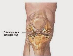 Cara Mengatasi Pengapuran Tulang Sendi Lutut
