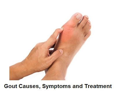 Gout is a rheumatic and painful condition that results from uric acid crystals depositing Gout Symptoms And Treatment : What Is Gout And What Causes It?