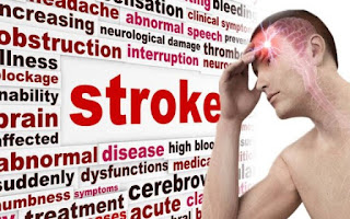 Warning Signs And Ways Of Preventing A Stroke From Occurring
