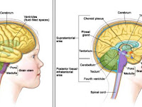 9 Early Symptoms of Brain Cancer in Children
