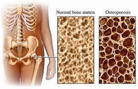 ओस्टियोपोरोसिस