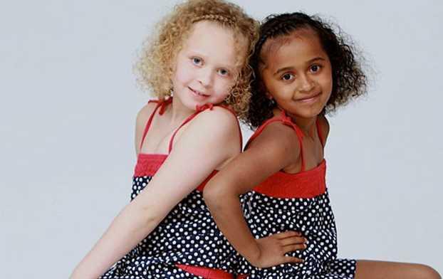 Kisah Manusia Kembar Paling Unik Serupa Tapi Tak Sama