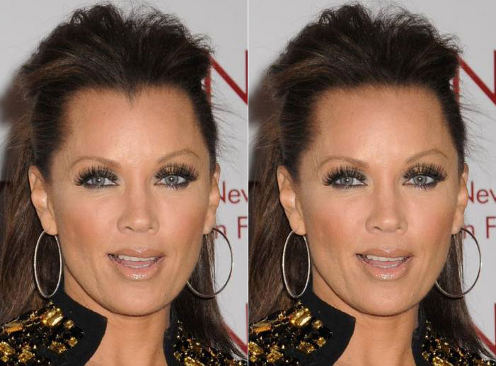 Cosmetic Surgery Connoisseur Are High Hairlines Really A