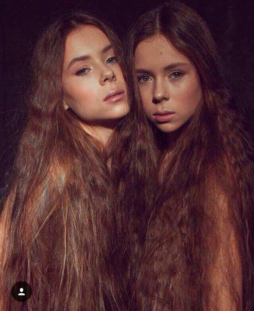 14-year old twin sisters fighting to stay alive after losing so much weight because of modelling school