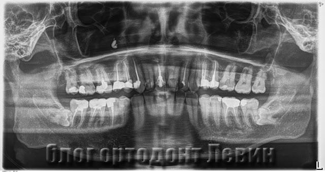 Зубы мудрости упираются в семерки