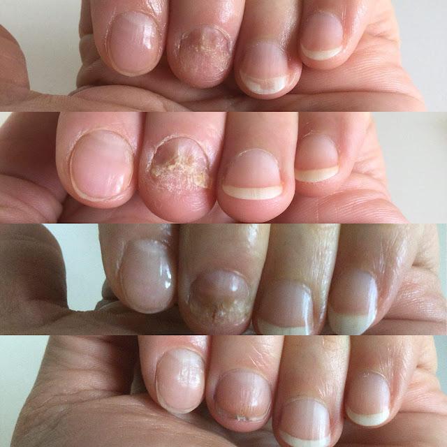 Чем лечить грибок на ногте пальца - Аргент Макс от Аврора (Aurora)