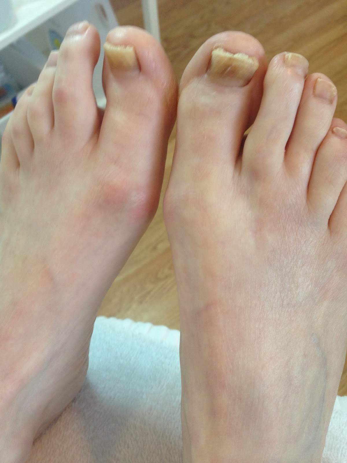 Update! Nail reconstruction with Wilde Pedique gel. | Lucie\'s Foot Care