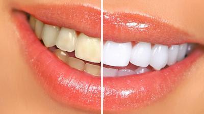 vinaigre pour detartrer les dents
