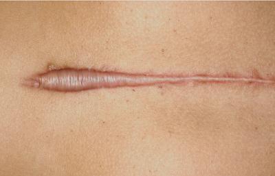 Pengobatan bekas luka yang sangat efektif dari dalam dan luar Pengobatan Bekas Luka yang Sangat Efektif Dari Dalam dan Luar