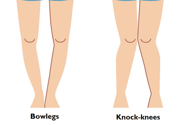 Bow Legs Treatment