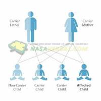 Faktor Utama Penyebab Timbulnya Jerawat Faktor Genetik