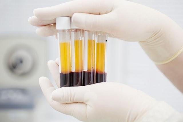12.000 Plasma Darah asal China Positif Terkena Virus HIV